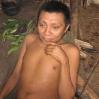 Dieser Yanomami ist durch die Onkozerkose (Flussblindheit) erblindet.
