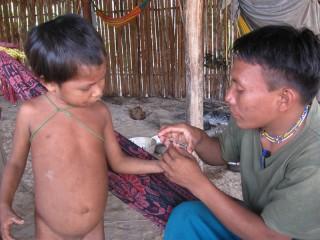Pancho nimmt bei einem Yanomami-Kind Blut ab