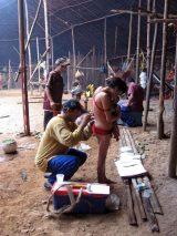 Ein Arzthelfer entnimmt eine Hautprobe bei einer Yanomami-Frau zur Untersuchung der Onkozerkose.